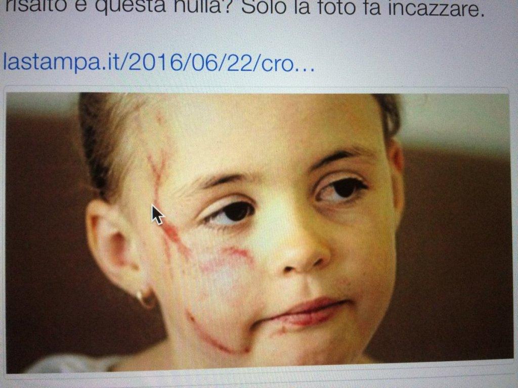 bambina colpita da nigeriano